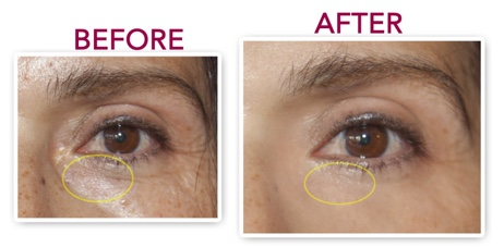 Genucel eye cream before and after